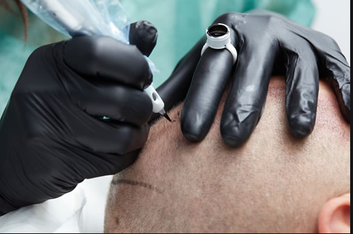 The Reasons Why You Should Get Scalp Pigmentation